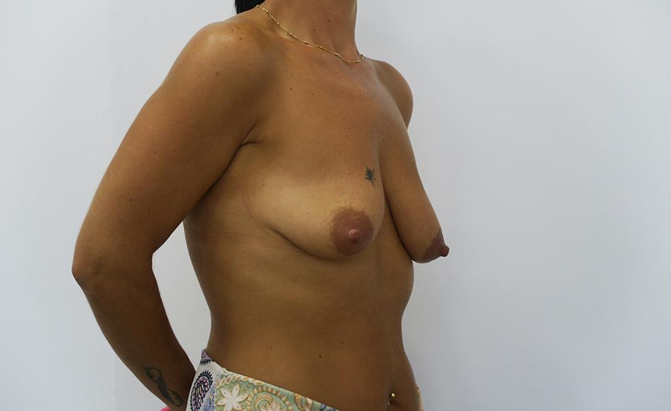 Mastopexia con y sin prótesis | Plástica Ruiz Moya