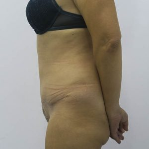 Abdominoplastia en Sevilla | Antes