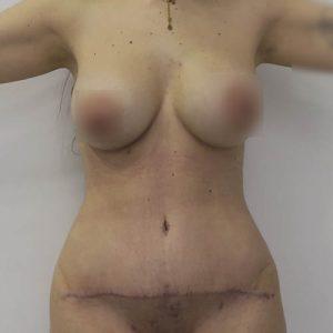 Abdominoplastia combinada con liposucción