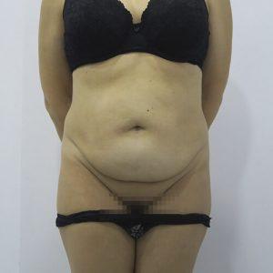 abdominoplastia sevilla