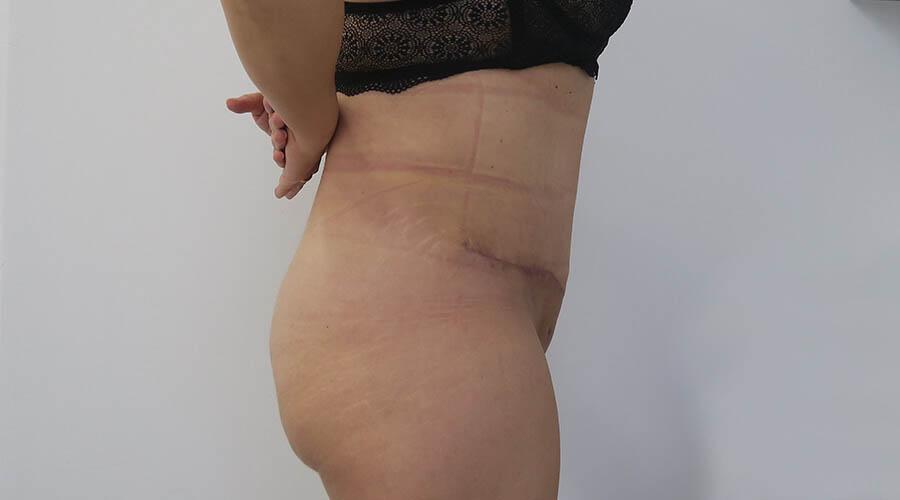 Abdominoplastia en Sevilla | Cirugía plástica, estética y reparadora
