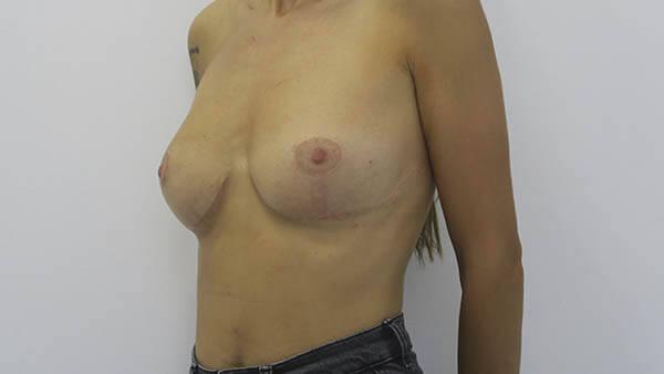 Elevación de mamas en Sevilla | Cirugía plástica, estética y reparadora