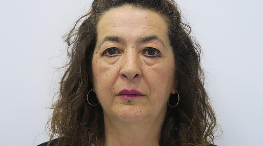 Aumento de pecho en Sevilla | Cirugía plástica, estética y reparadora